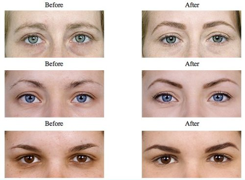 Full face threading